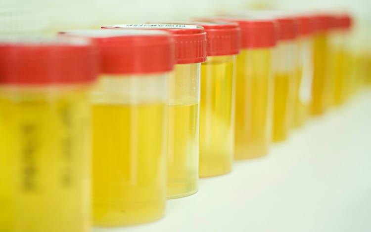 Através da análise à urina, é possível identificarem-se algumas infeções e doenças. Conheça os valores com mais relevância para a sua saúde