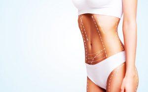 Dois cirurgiões plásticos indicam 4 técnicas feitas em consultório para perder gordura.