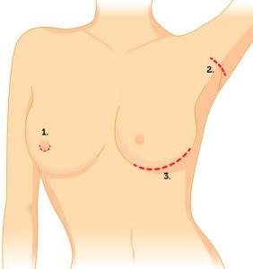 mamoplastia de aumento: por onde é colocada a prótese