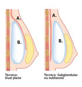 mamoplastia de aumento - duas técnicas