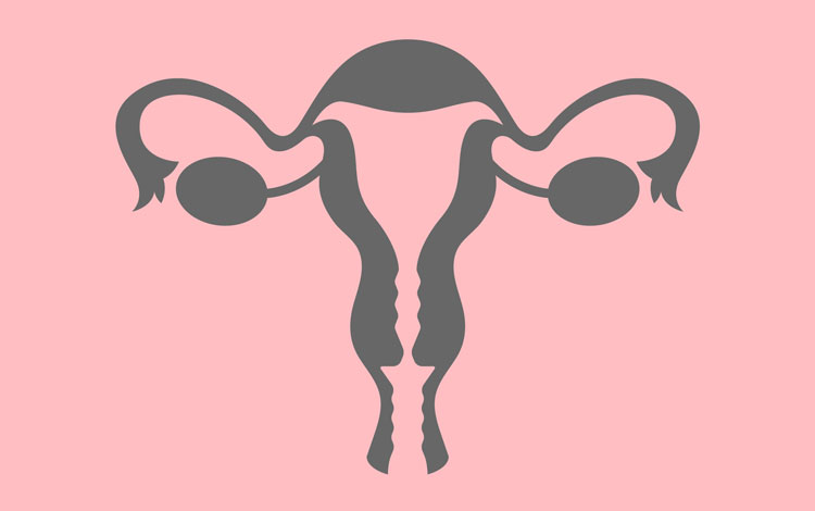 mioma uterino: causas, sintomas e tratamentos