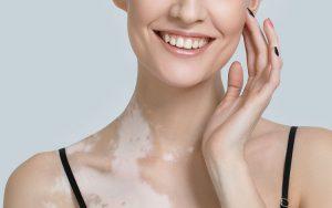 vitiligo causas