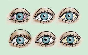 O que dizem os seus olhos sobre a sua saúde?