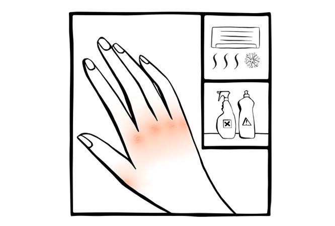 2. Mãos secas e irritadas