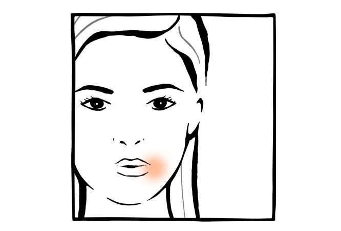 12. Irritações periorais em adultos