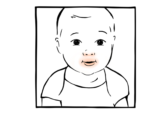 5. Irritação perioral no bebé