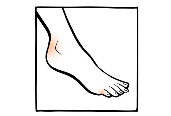 13. Irritações nos pés