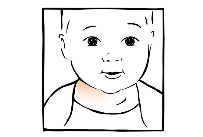 16. Irritações nas pregas cutâneas do pescoço do bebé