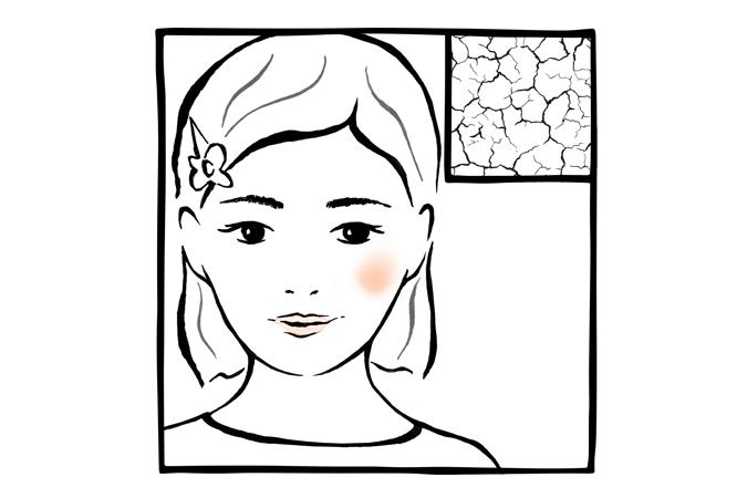 15. Secura localizada no rosto