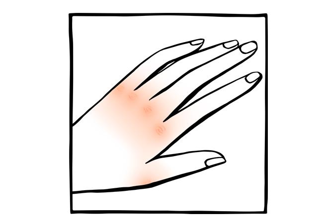 10. Mãos muito secas ou com frieiras