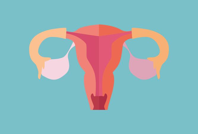 Doenças associadas, como síndrome do ovário poliquístico ou síndrome metabólica