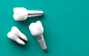 implantes dentários: tipos, como escolher