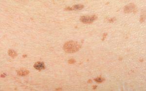 Cancro da pele: sintomas e sinais